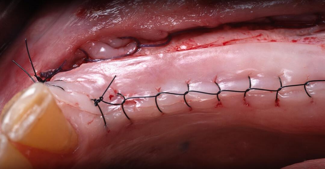 Cirugía mucogingival sanhigia