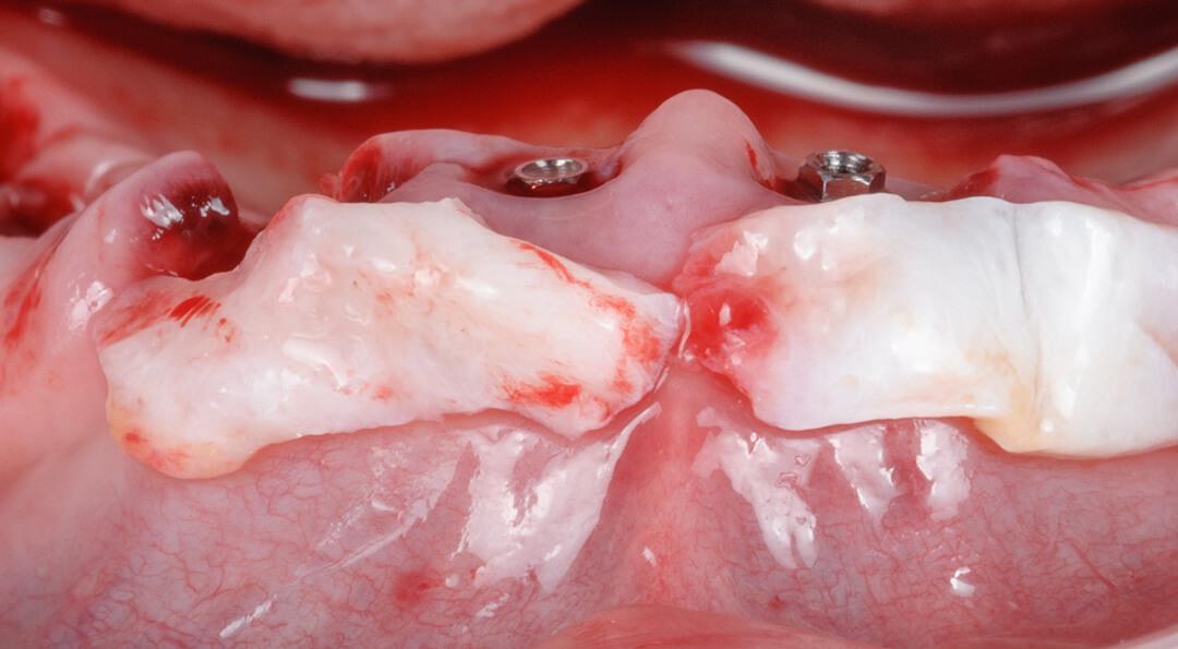 terapia periodontal básica gomez meda