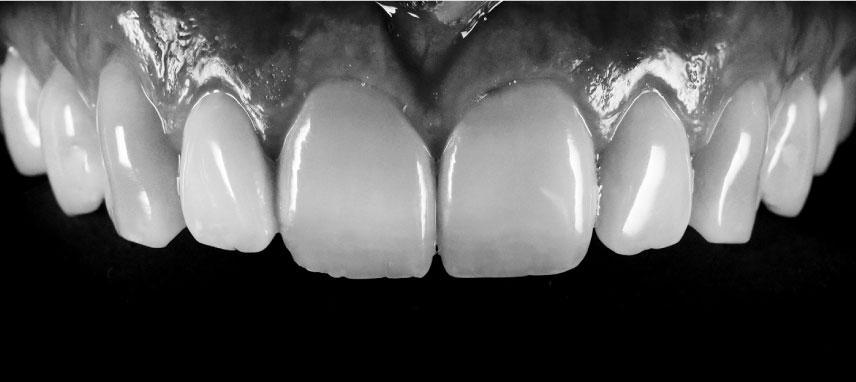 Curso de fotografía dental
