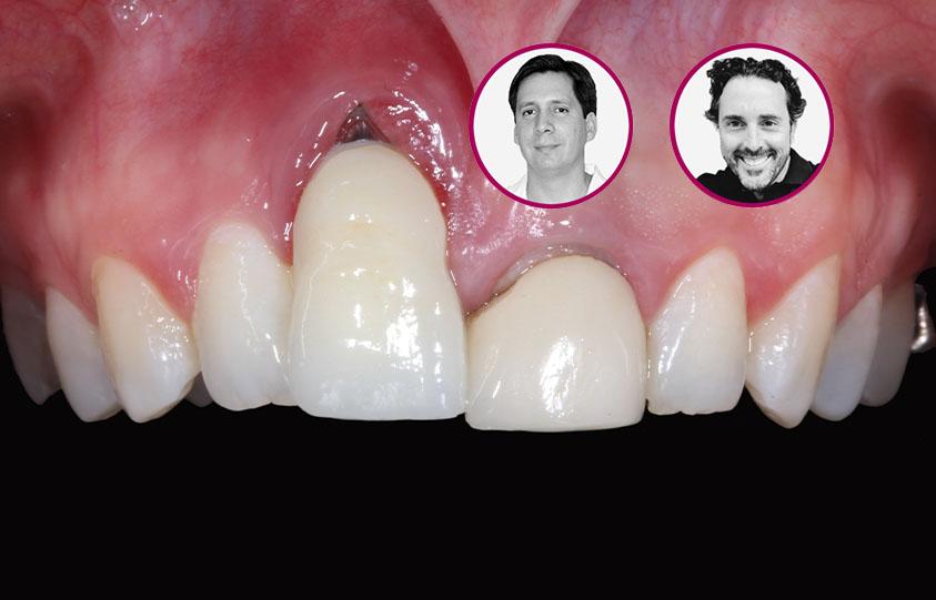 Curso Explantación de Implantes Fallidos y Retratamiento empleando enfoques reconstructivos óseos y mucogingivales.