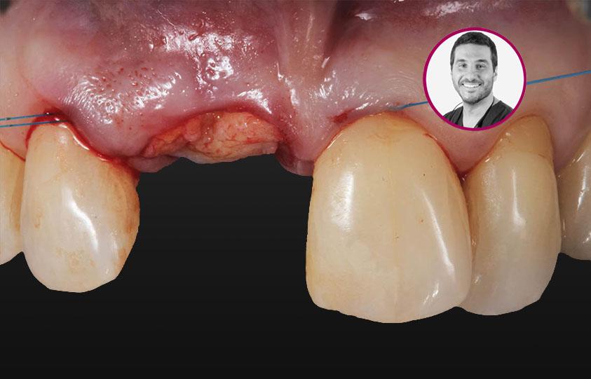 Curso Microcirugía Mucogingival