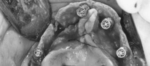 Curso Online Implantes Paltinizados Antonio Flichy