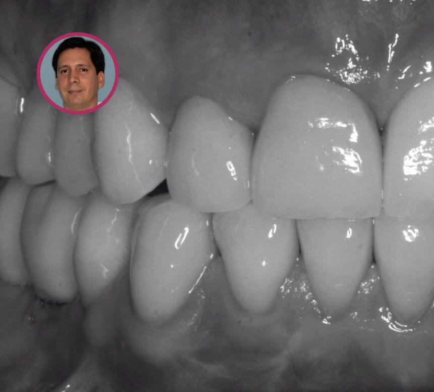 Regeneración Ósea 3D curso David González